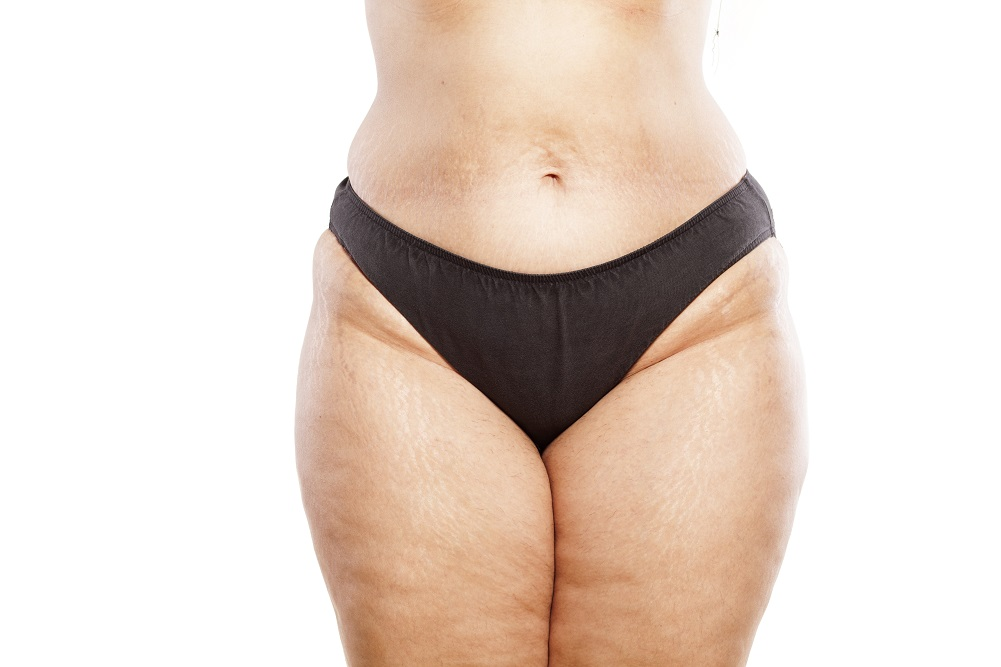 Cellulite Improved Through Balancing Hormone