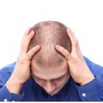 How Hormone can Help with Hair Loss