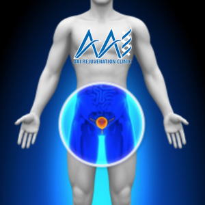 Testosterone therapy and Prostate Health, Testosterone Therapy and Prostate Cancer